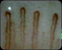 何歳からでも「美しい血管に生まれ変わる」方法☆血液オゾン療法