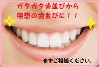 ガタガタ歯並びもワイヤーなしの矯正治療で美しい歯並びに!