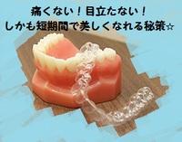 超楽な歯列矯正、しかも痛みなし、短期間、誰にもバレない!