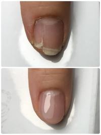 お爪の補修