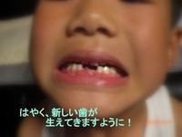 2本目の歯が取れました^^!