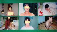 アトピー性皮膚炎の食事指導