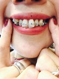 歯科矯正⑬‐ついに!外れました!